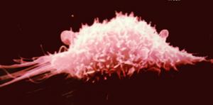 macrophage.jpg